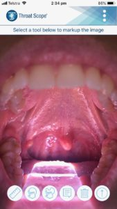 TelScope example image of a patient's mouth