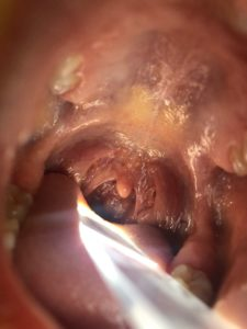 Throat Scope illuminating the inside of a patient's mouth